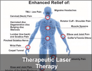 Therapeutic Laser Therapy